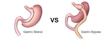 Différence entre sleeve et bypass : notre avis professionnel